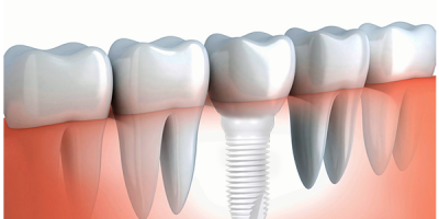 The Application of Zirconia Ceramics in Oral Medicine Field