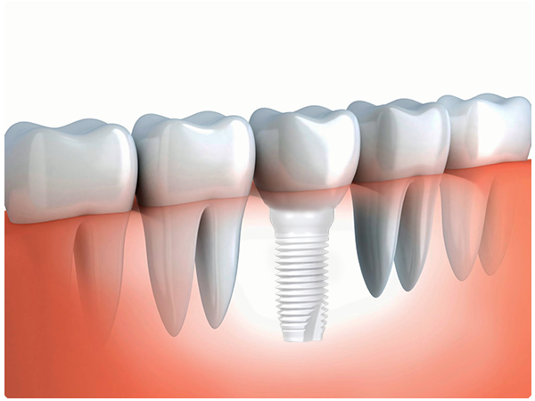 Dental Implant Teeth Ceramic