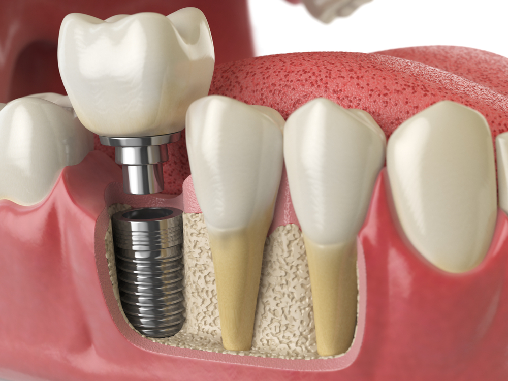 Zirconia Ceramics For Crown Implants Application